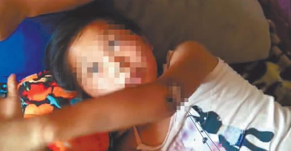 哈尔滨10岁女孩被脱落网线电倒 2玩伴冒险挪线救人
