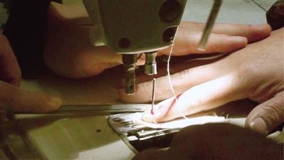 看着都疼!做窗帘手指被缝纫机针刺穿救援中强忍疼痛全程淡定